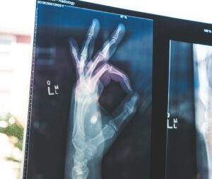 Hand xray with OK sign